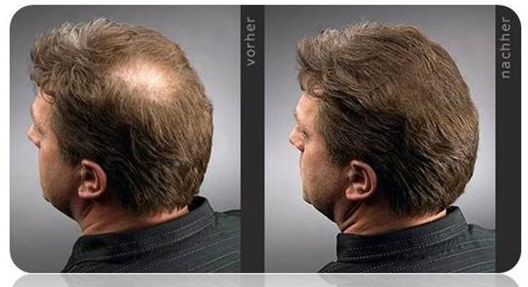 Выпадение волос лечение зож